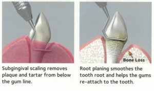 How-are-periodontal-diseases-treated