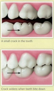 How-can-you-tell-if-a-tooth-is-cracked