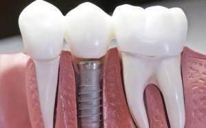 pic-implants